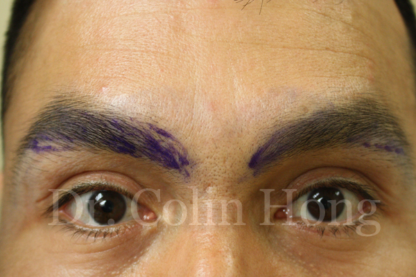 intraorbital steroid injection